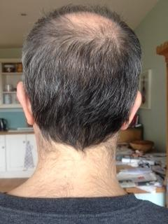 Dave Harris back of head