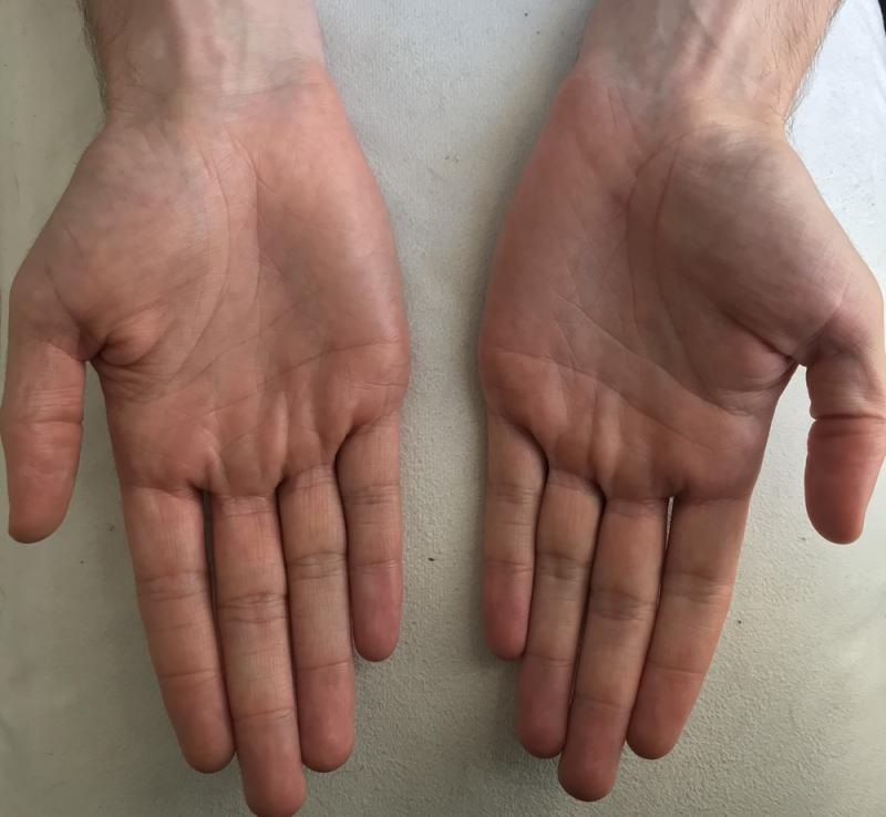 Palm of Hands Profile