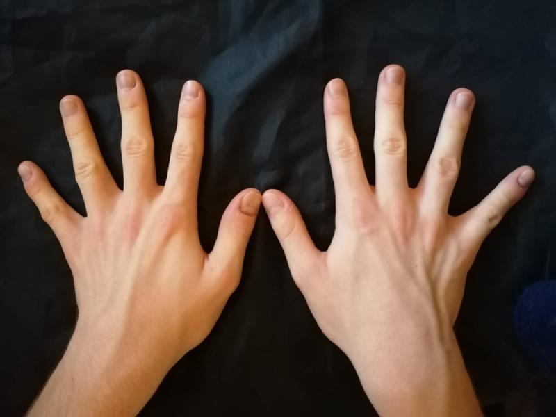 Hands - Back
