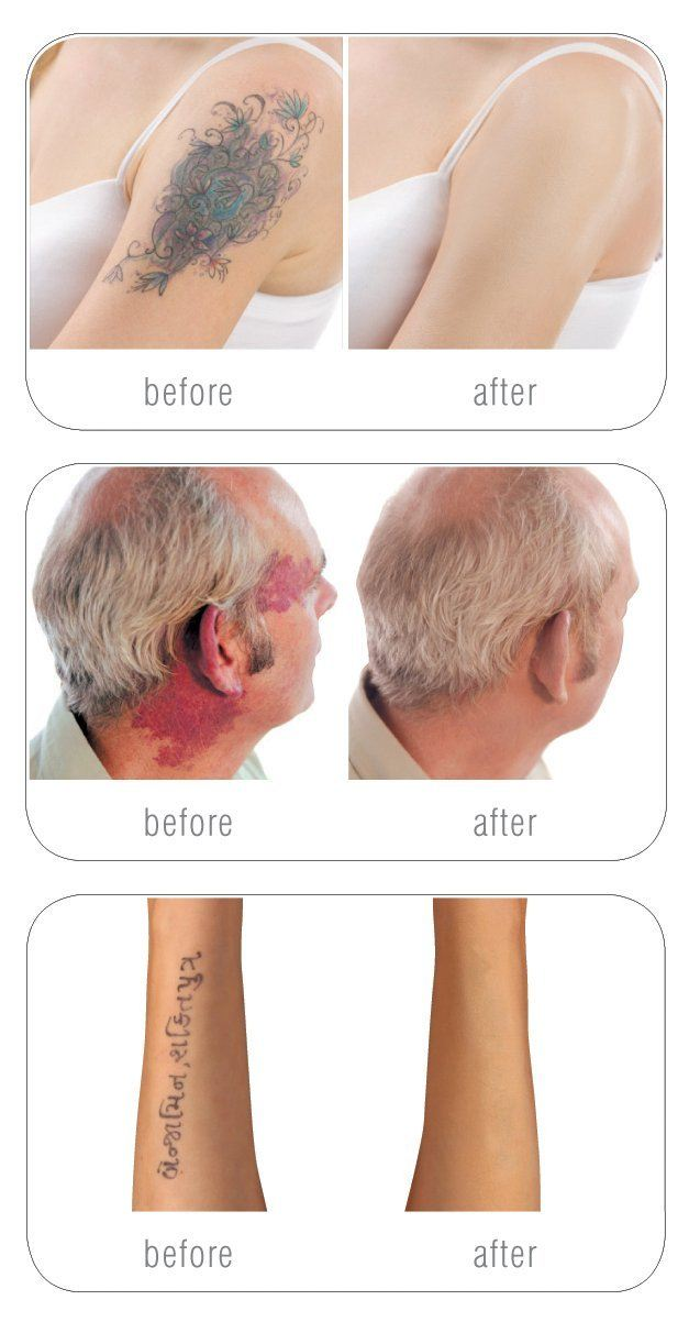 Rio Skin Camouflage Concealer Tattoo Scar Blemish Covering