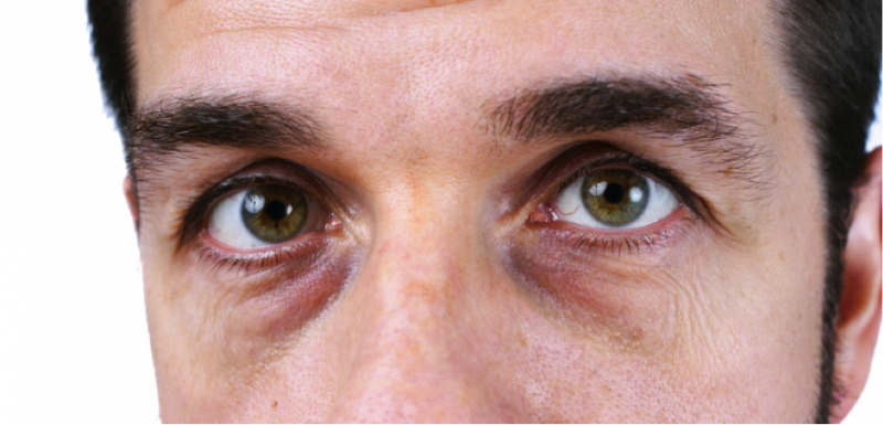 ojeras-bolsas-de-ojos-por-malos-habitos-de-vida