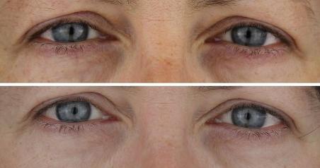 Mesoterapia facial tratamiento no invasivo para reducir las ojeras