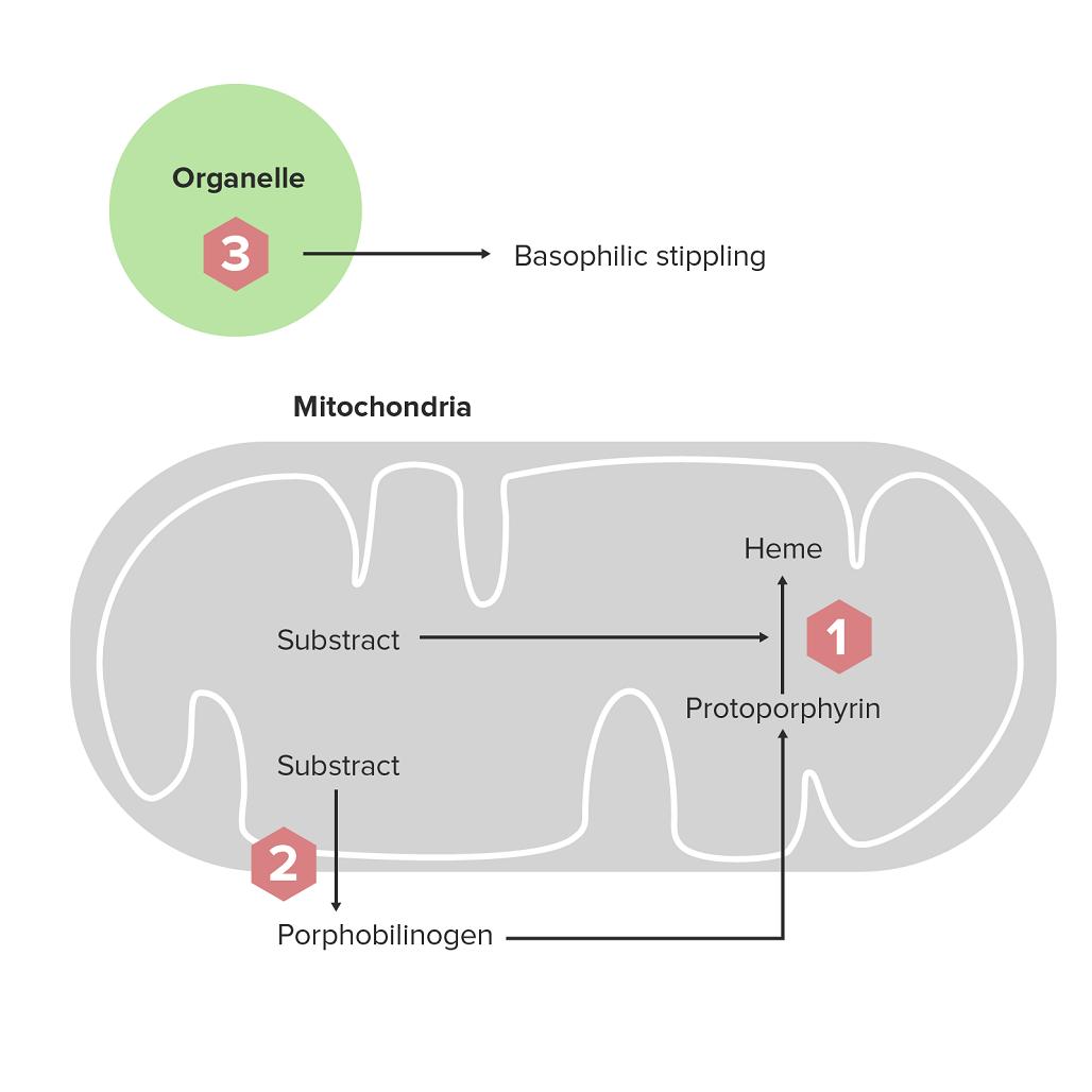Pathology USMLE Step 1 Sample Question