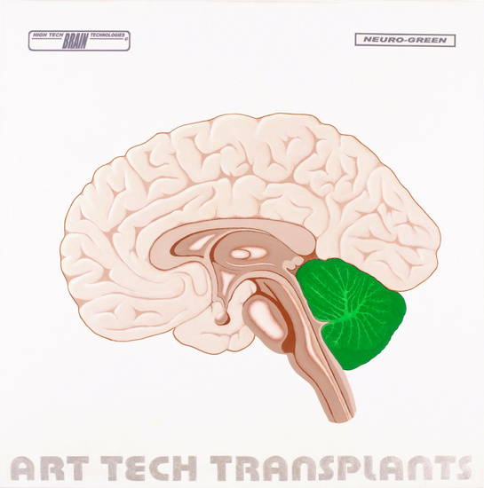 HTBT art tech Transplant: Neuro green