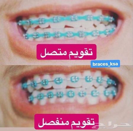 تقويم أسنان زينة ضد الصدأ