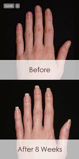 Gel Nails Can Be More Beneficial To The Health Of Your Natural Nail Because Less Chemicals Are Used In Than There Acrylic And It Help