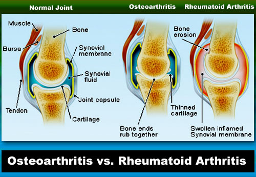 Image result for INFOGRAPHICS OSTEOARTHRITIS