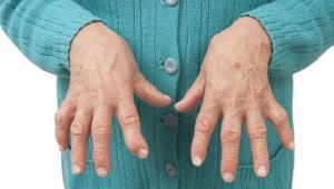 Ultime Notizie Malattie Autoimmuni News