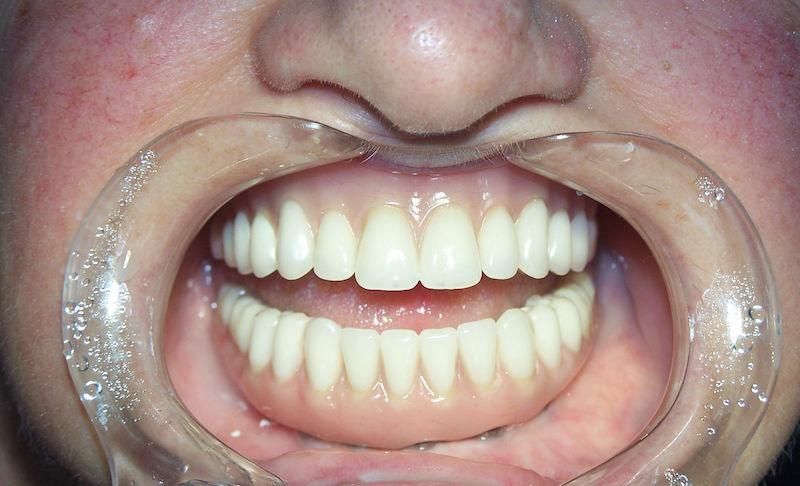 Meet-the-London-dental-clinic-bringing-back-winning-smiles-1