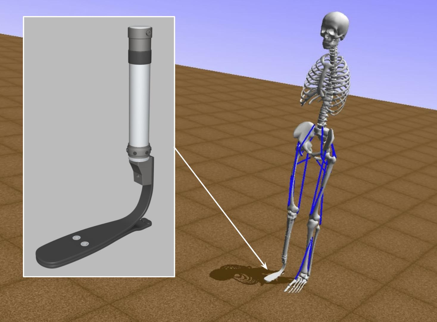 AI for prosthetics