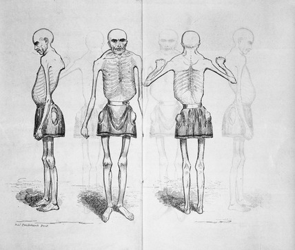 An Account of the Living Skeleton: 19th century