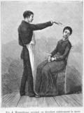 Hypnotism produced by the sudden stretching of the hand, 1881.