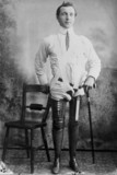 Man wearing a pair of artificial legs, 1890-1910.