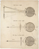 Diagrams of the eye showing perfect, long and short sight.