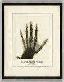 X-ray of the left hand of the Prince of Wales, 1931.