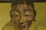 Head of an acupuncture figure, Chinese, late Ming dynasty, c 17th century.