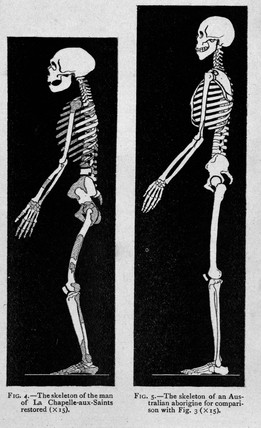 Two representations of skeletons, 1913.
