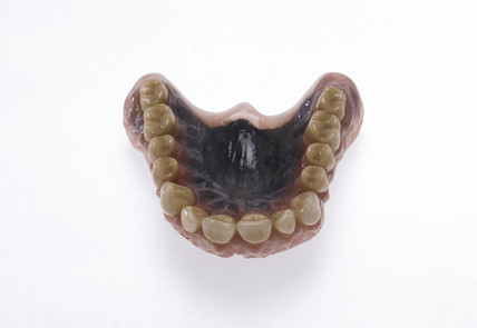 Experimental upper set of false teeth, late 20th century.