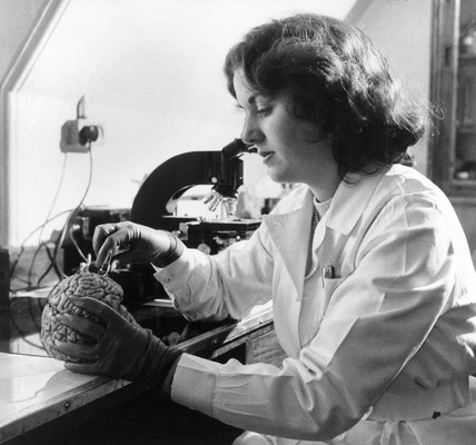 Laboratory technician examining a human brain, 17 March 1957.