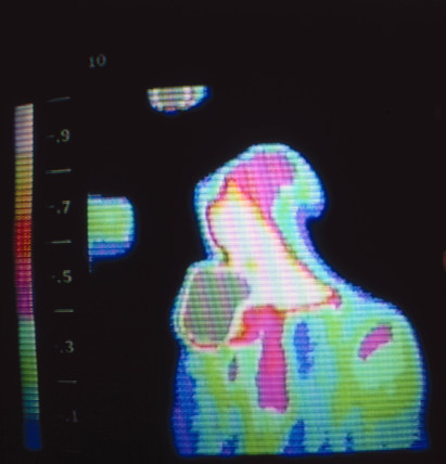 Thermal image of a person drinking, c 1980s.