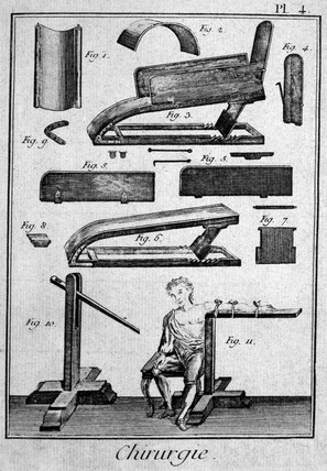 Bloodletting instruments, 1780.