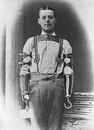 Man wearing a pair of artificial arms, 1890-1910.