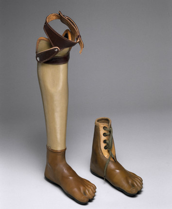 Artificial leg with Jaipur artificial foot, 1982.