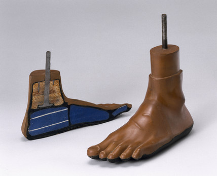 Jaipur artificial foot, 1981.
