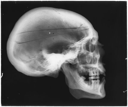 X-ray of a human skull, England, 1901-1930.
