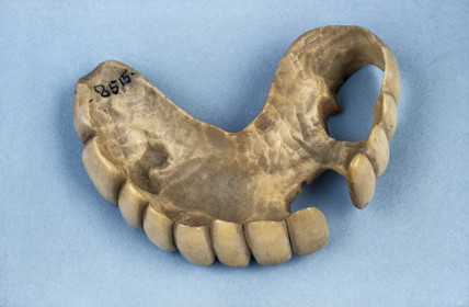 Partial upper denture, 1820-1870.
