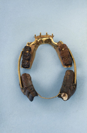 Partial upper and lower denture, 1801-1850.
