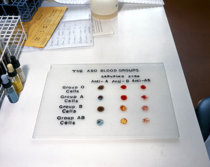 The ABO blood groups, 1980.