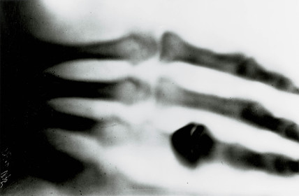 Roentgen's X-ray photograph, 1895.