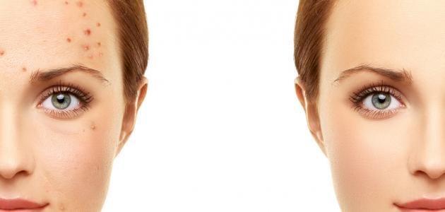 طرق منزلية سريعة المفعول لإخفاء حبوب الوجه فى اسرع وقت - المشاهدات : 1.39K