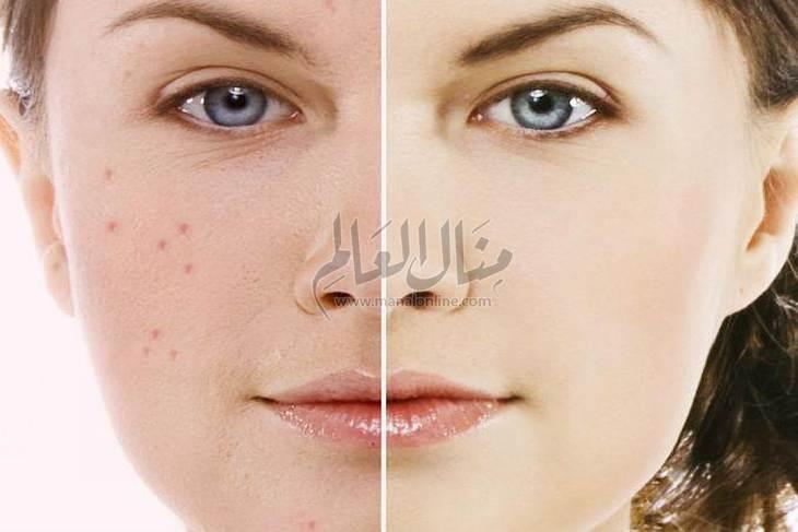 أكثر4 ماسكات فاعلية في إزالة حبوب الوجه