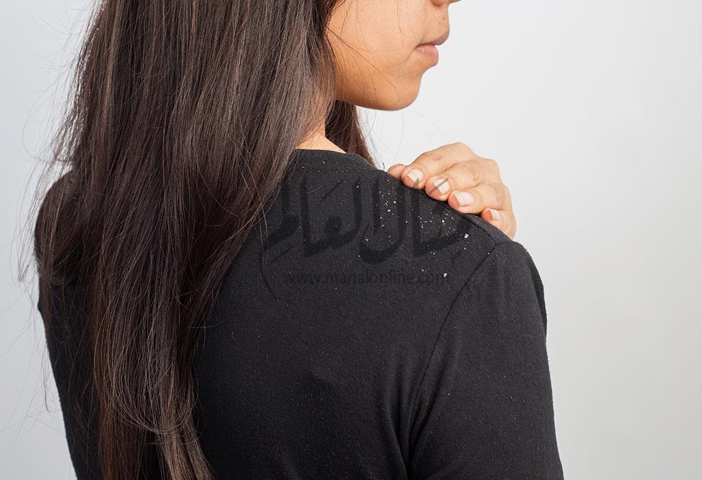 علاج قشرة الشعر وأسباب الإصابة بها - المشاهدات : 1.48K