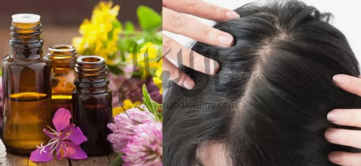وصفات سحرية لعلاج فراغات الشعر بسهولة - المشاهدات : 6.3K