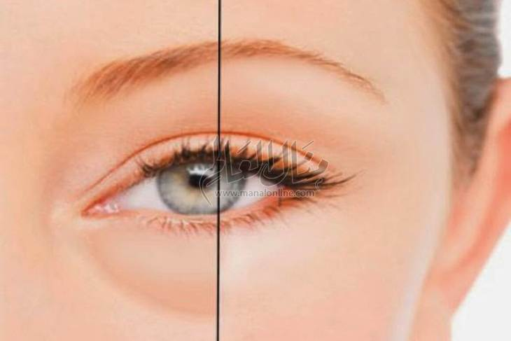 6 طرق منزلية للتخلص من الانتفاخ أسفل العيون