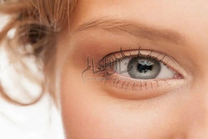 أفضل العلاجات المنزلية للتخلص من إحمرار العين