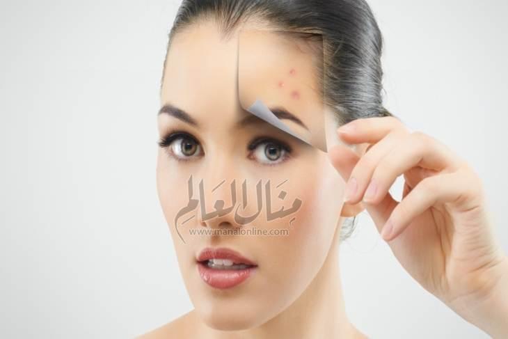 أسباب ظهور حبوب الوجه وعلاجها