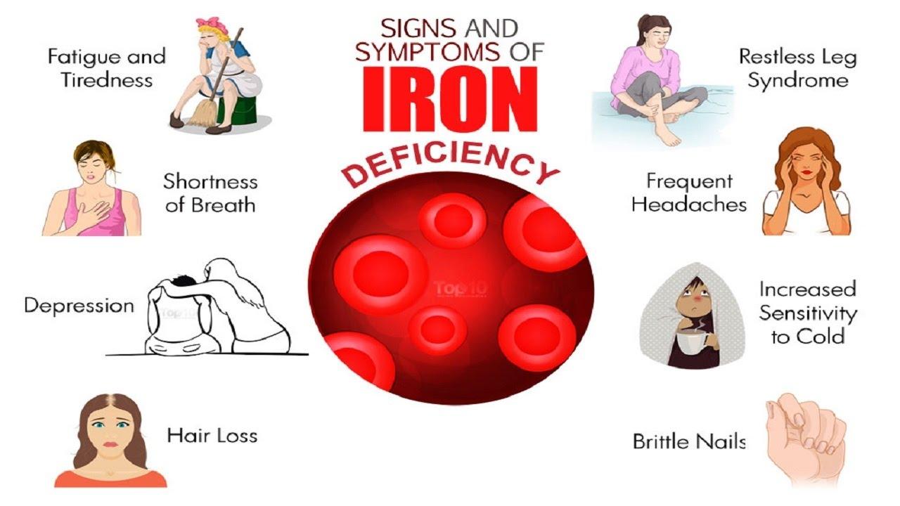 أعراض الأنيميا أو نقص الحديد  - المشاهدات : 4.68K