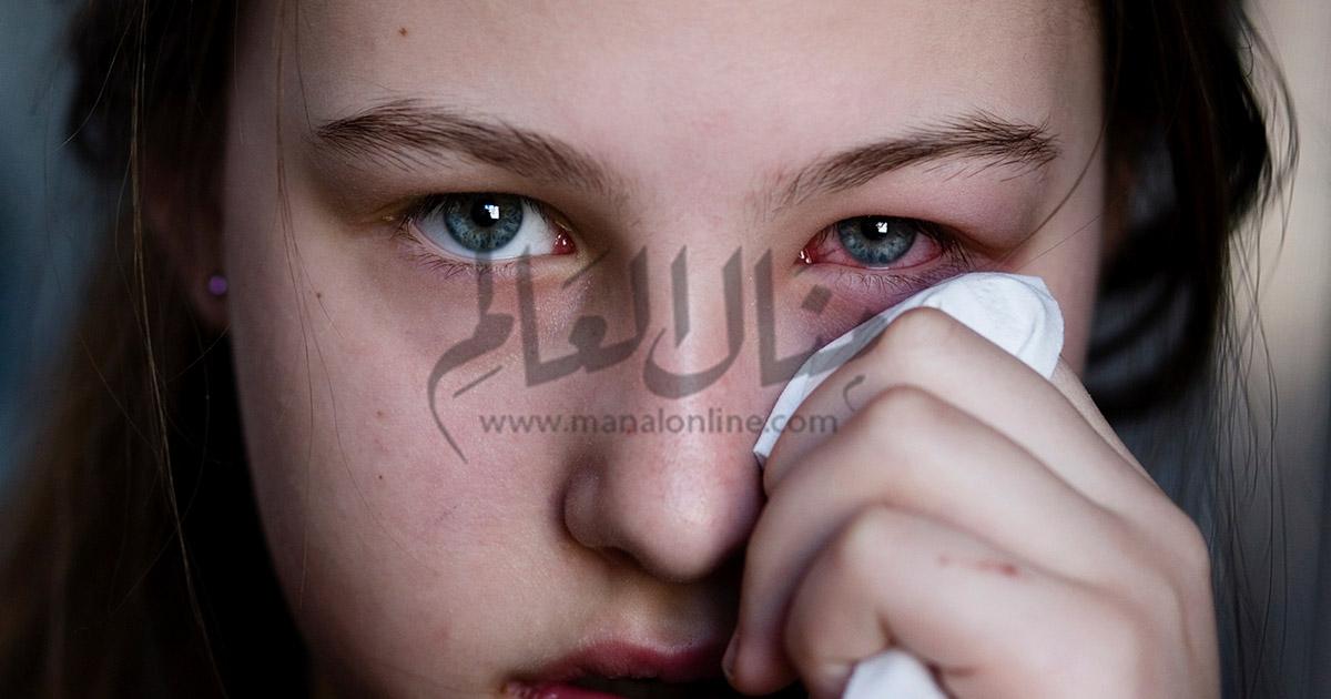 أسباب احمرار العين وعلاجها - المشاهدات : 2.19K