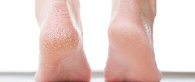 علاج تشقق القدمين بـ 5 طرق مذهلة ستخفي التشققات وخشونة القدمين نهائيا فى أسرع وقت - المشاهدات : 5.51K