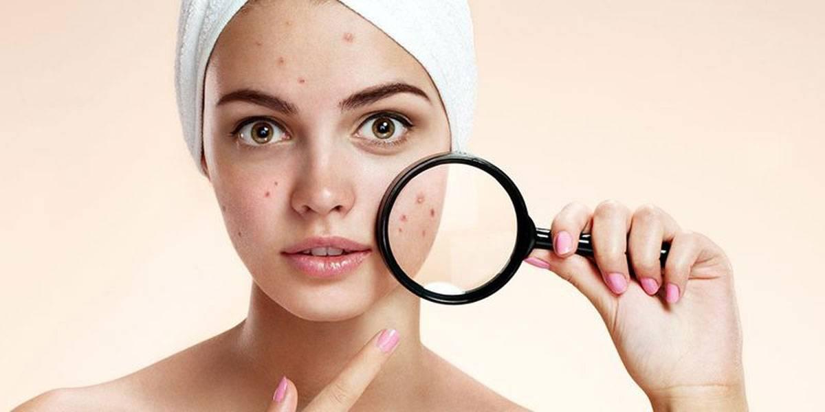 3 نصائح بسيطة لتقليل انتشار الحبوب فى الوجه