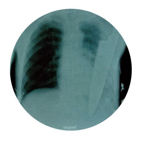 The NBME® Surgery Shelf Exam