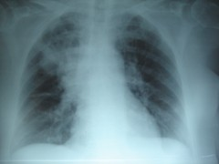 Pulmones afectados por fibrosis quística