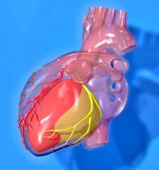 Reperfusión para tratar la cardiopatía isquémica