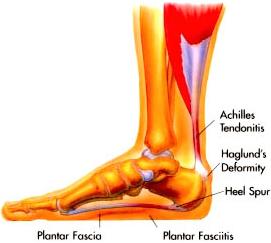 Foot, Leg and Heel Pain - Abbots