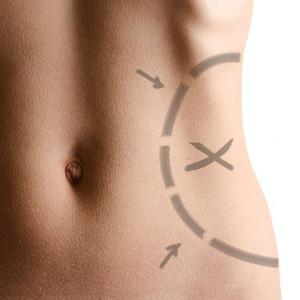 Productos de calidad-Bellanova cirugía plástica y Medicina Estética