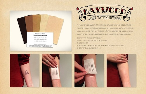 Baywood Laser Tattoo